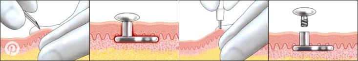 Dermal Piercing Process